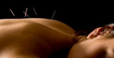 acupuncture-bluelotus
